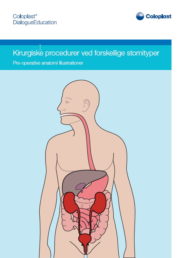 Kirurgiske procedurer