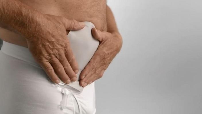Urostomi 1-dels stomipose